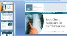 Go to online Basic Chest Radiology for the TB Clinician Presentation Slide Set (Teaching Tool Set 1 of 2)