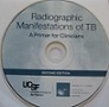 Go to online Radiographic Manifestations of Tuberculosis Page