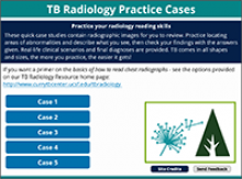Go to online Tuberculosis Radiology Practice Cases page