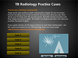 TB radiology practice cases front web page