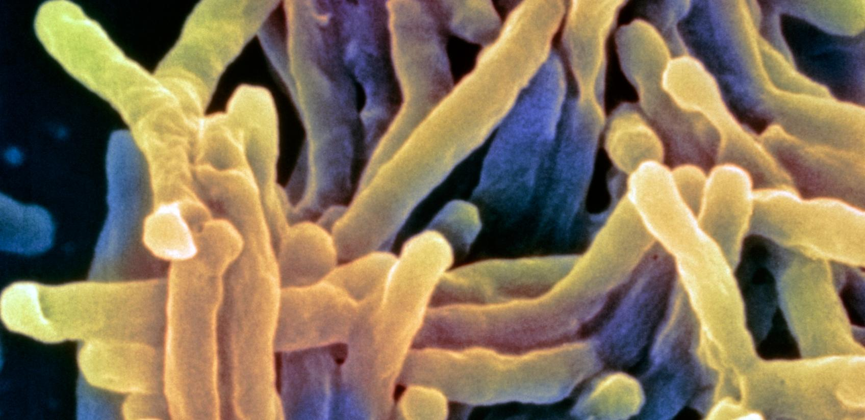 Picture of tuberculosis from a microscope.